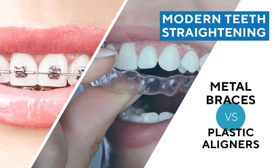 Modern Teeth Straightening Metal Braces versus Plastic Aligners